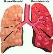 Hronicni+bronhitis