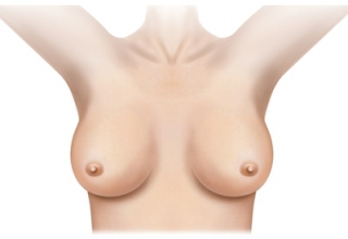 dojke2