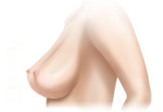 dojke4