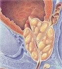 enlarged_prostate