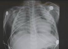 pneumocystis_carinii