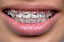 Ortodontske_anomalije_i_govor