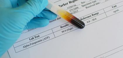 Test krvi odredjuje pol bebe