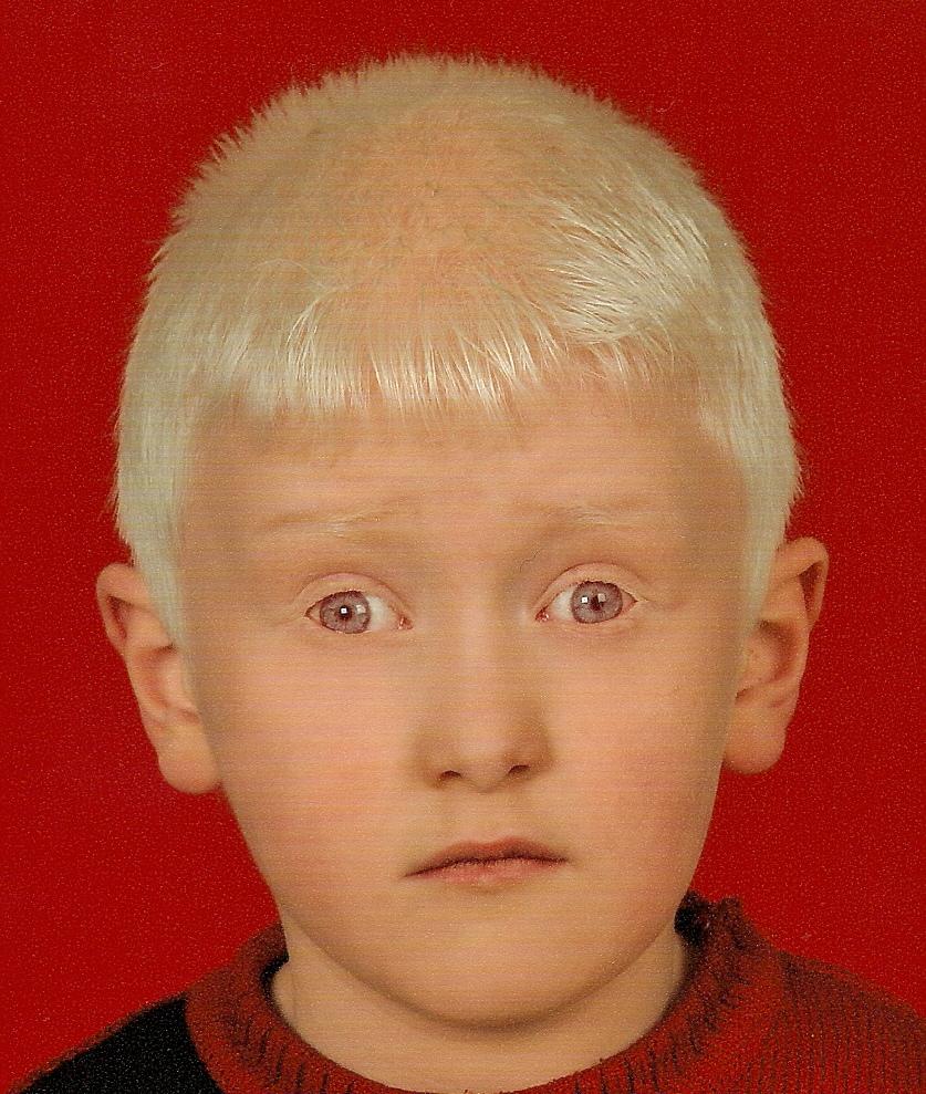 albinizam