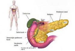pankreasna-litijaza