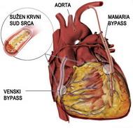 coronary_artery_bypass1