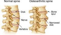 degenerative-spinal-arthritisdo