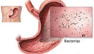 gastroenetritis