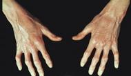 Sklerodermija-i-morfea