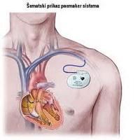 kardiomiopatija