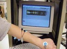 Elektromiografija