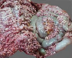 Maligni_tumori_peritoneuma