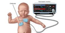 Neonatalni-monitor