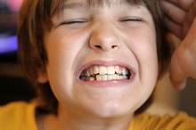 bruksizam-ili-skripanje-zubima