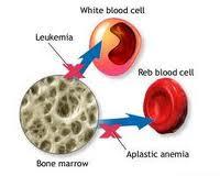 fanconi-anemija