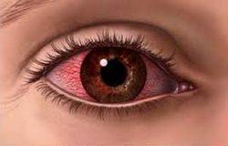 Sindrom-suvih-ociju