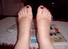 trudnicka-stopala