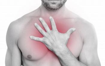 Kostohondritis-Bol u predelu grudne kosti