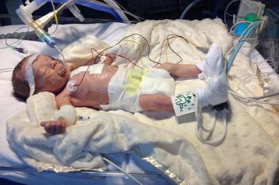 Operacija urodjene anomalije novorodjenčeta nakon rodjenja